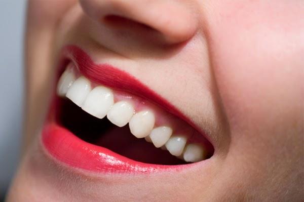Cara Memutihkan Gigi Tanpa Harus Ke Dokter Gigi